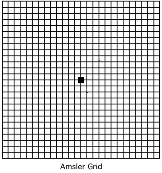 picture relating to Printable Amsler Grid referred to as Grille Amsler Pee Fixed Grandes